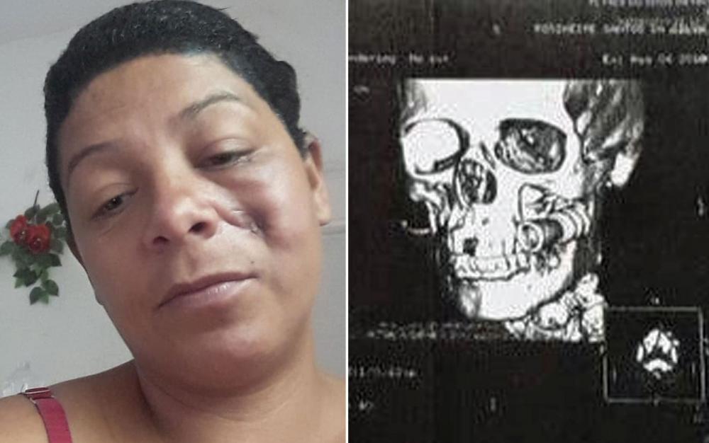 Rosimeire dos Santos Silva ficou com o rosto marcado pelo tiro de borracha que levou — Foto: Arquivo pessoal