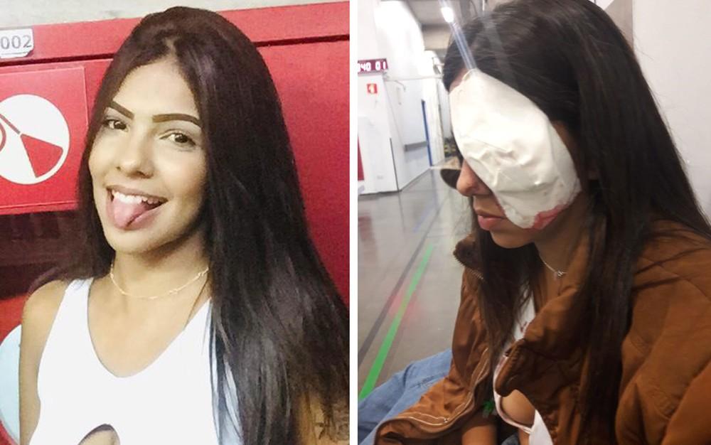 Jovem de 16 anos foi atingida no olho por bala de borracha em ação da polícia em Guaianases, na Zona Leste de SP — Foto: Arquivo pessoal