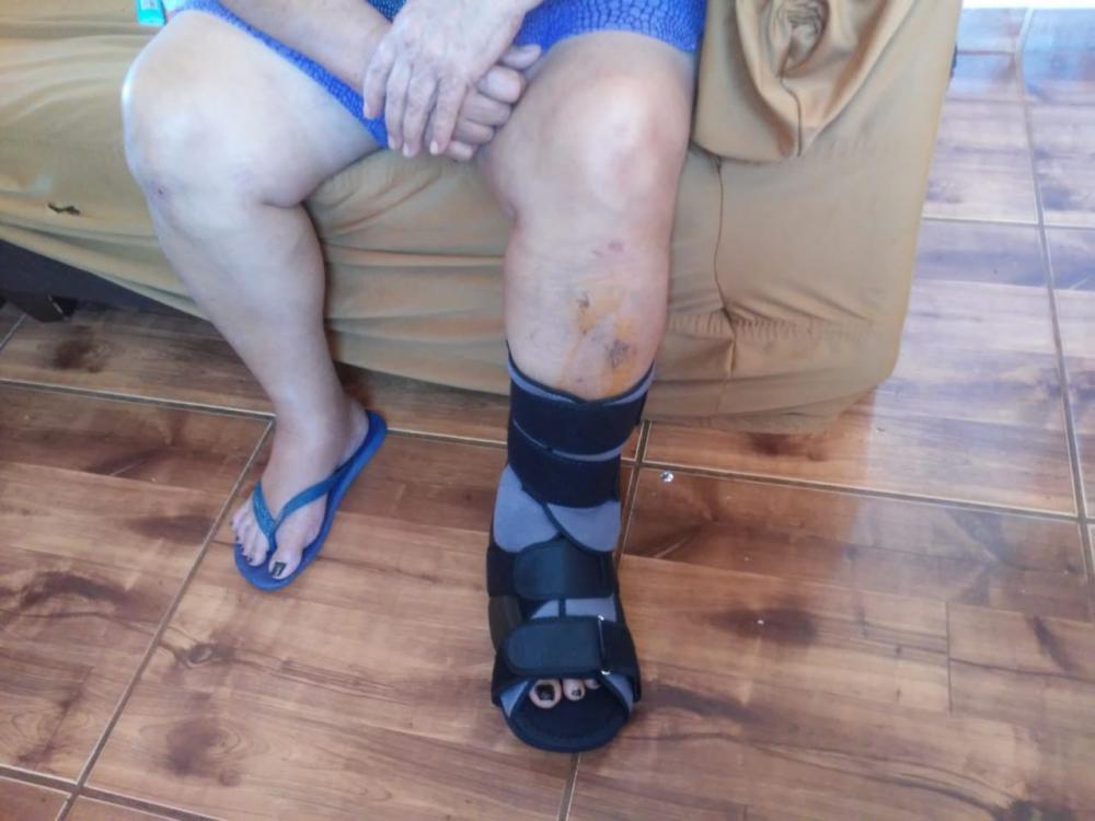 Sem atendimento no PS, idosa teve que emprestar dinheiro para comprar bota ortopédica para o pé fraturado - Divulgação