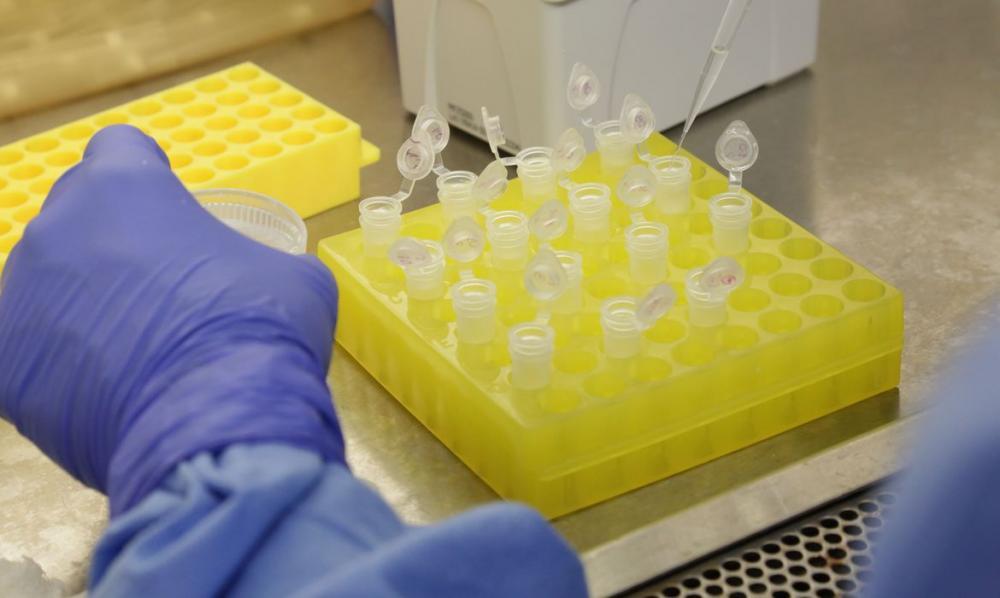Brasil tem a 8ª maior taxa de letalidade de coronavírus no mundo